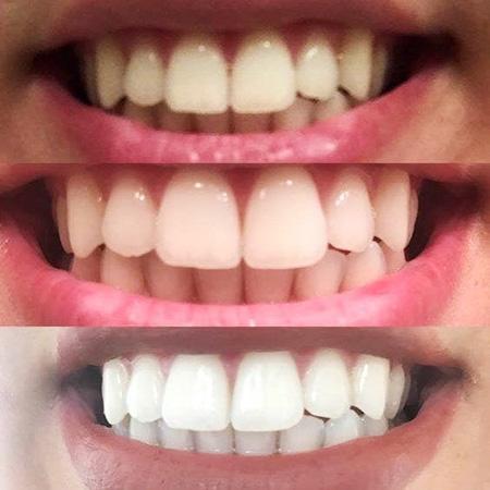 hiệu quả và công dụng của miếng dán trắng răng