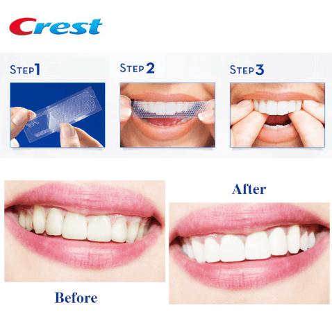 hướng dẫn sử dụng miếng dán trắng răng crest
