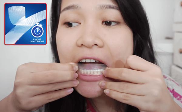 Miếng dán trắng răng là gì