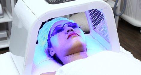 phương pháp điều trị mụn bằng ánh sáng xanh