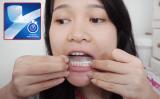 Miếng dán trắng răng loại nào tốt? Mua ở đâu?